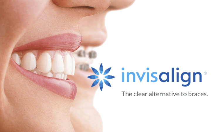 Invisalign Clear Braces, Dentist Surrey